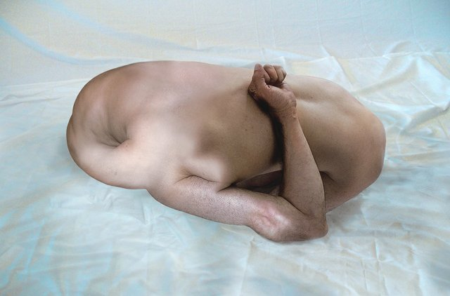 "Mohsen Khalili, ""from the series Dysfunctioned Body Parts series,"" 2003–2018"