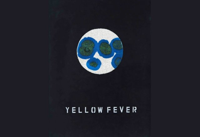"""Ruth Cuthand, """"Yellow Fever,"""" 2009"""