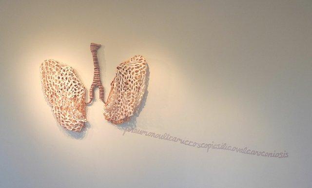 "Karina Bergmans, ""Lungs-Pneumonoultramicroscopicsilicovolcanoconiosis,"" 2011"